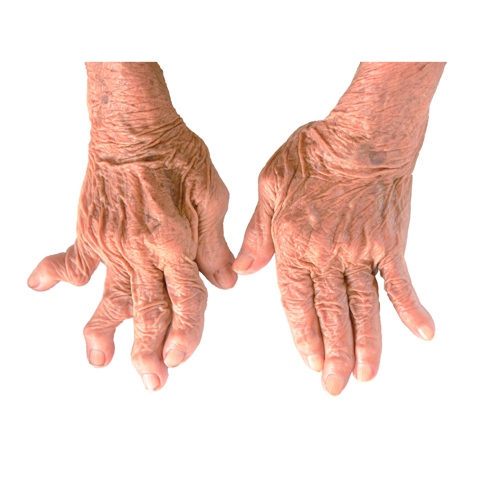 Watch Does the Weather Make Rheumatoid Arthritis Worse video